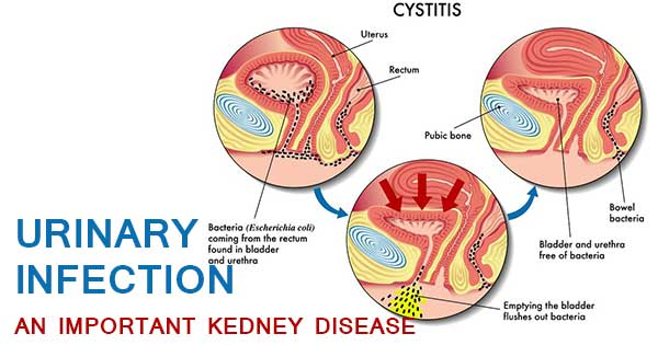 URINARY INFECTION AN IMPORTANT KEDNEY DISEASE